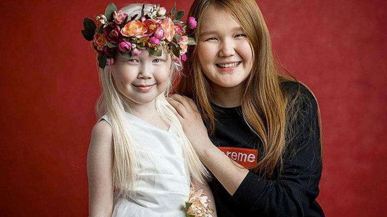 Нараяна е второто дете в семейството и единствения в рода известен албинос, въпреки че албинизмът е смятан за наследствена болест.