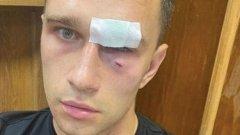 Бивш капитан на Русия прати съдия в болница (видео)