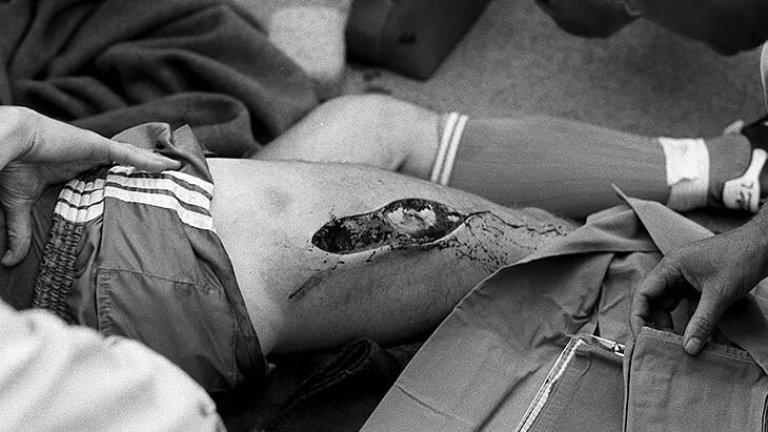 Отворената рана е 25 сантиметра по дължина и дълбока пет сантиметра