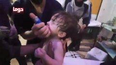 В нападение над град Дума в Източна Гута може да е използван химически агент