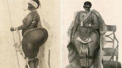 """Коя е Сара Бартман, разкарвана години наред в """"шоута за изроди"""" в началото на 19 век из Лондон и Париж? Прочетете една история за генетично заболяване, расизъм, предрасъдъци, алкохол и жестокост...  Снимка: Science Photo Library"""