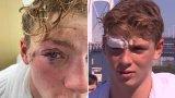 """""""Окото ми, окото ми изтече във водата!"""": Олимпиец разказа за преживения ужас"""