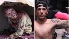 Сантънистасо се ражда с много рядко заболяване, заради което му липсват и крайници.