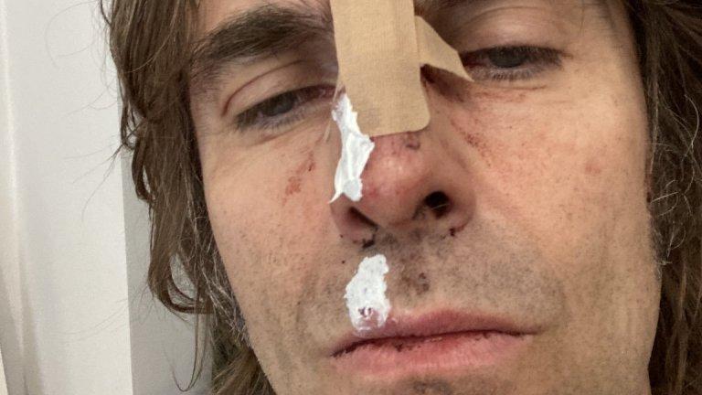 Фронтменът на Oasis посрещна рождения си ден със счупен нос след падане от хеликоптер. Това обаче далеч не е най-запомнящото му се изпълнение