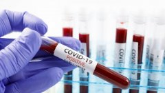 Германска компания тества ваксина срещу COVID-19 върху доброволци