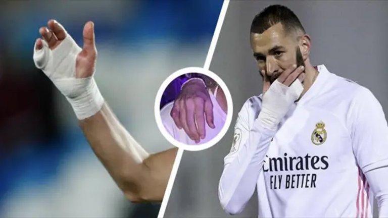 Обяснено: Защо вече повече от 2 г. Бензема играе с превръзка на ръката