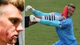 Защитник за малко не нокаутира вратаря с брутален ритник в лицето (видео)