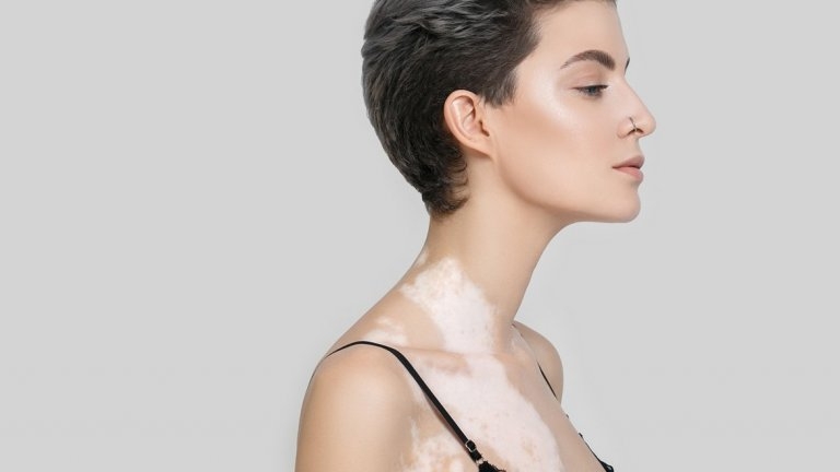 Удар по самочувствието...  Макар основното отражение на витилиго да е по-скоро козметично и да засяга външния вид на човек, по-голямо отражение то може да има върху емоционалното здраве. Появата на петната по видими места от тялото като лицето и ръцете, може да доведе до стрес и да повлияе на увереността на хората с това състояние на кожата в интимен план, а още по-силно може да се отрази на младежите, които са по-обсебени от това как изглеждат.