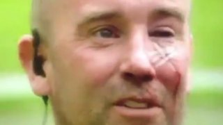 """Протестиращите на """"Олд Трафорд"""" раниха полицай, оставиха му белег за цял живот (видео)"""