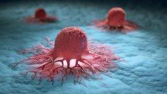 Учени откриха протеин, характерен за всички видове рак