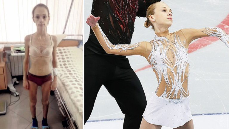 24 килограма на 16 години, анорексия и битка за живот: Кошмарът на една шампионка