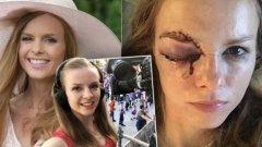 Барбора Зячикова претърпя изключително болезнен инцидент