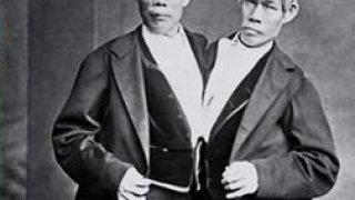 Чанг и Енг Бюнкер - сиамските близнаци, които покориха света