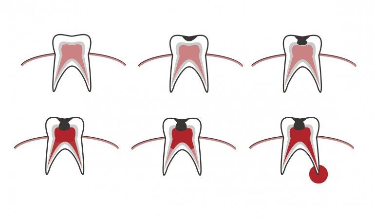Разликите между здравия зъб, малкия кариес, дълбокия кариес, пулпита и необратимия пулпит