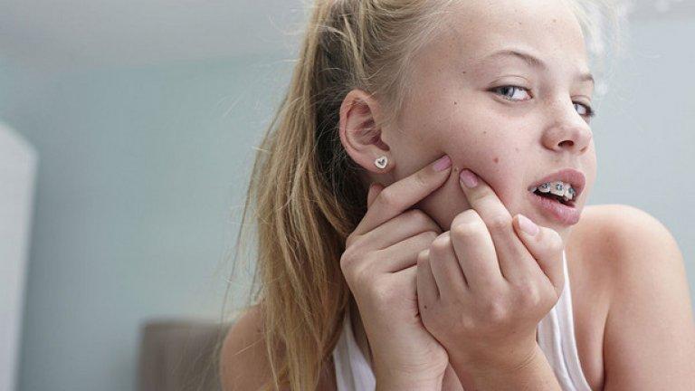Тъй като акнето е кожно заболяване, което оказва пряко влияние на естетиката на външния вид, то излиза от рамките на дерматологията и се превръща в психо-социален проблем при голям процент от юношите