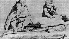 """Тютюнева клизма  Ако през 17-ти или 18-ти век сте се нуждаели от животоспасяващо лечение, то най-вероятно са щели да ви подложат на тютюнева клизма.  Това е метод, при който чрез специален апарат се вкарва тютюнев дим в тялото на пациента. Вярвало се е, че топлият пушек може да стопли почти загинало тяло и да стимулира вдишването и издишването, както и други жизнени фукнции.  Първоначално методът се е прилагал на пациенти, жертви на удавяне, но постепенно този """"лек"""" се е наложил и при третирането на настинки, главоболие, херния, холера и други. Причината? – никотинът в тютюна стимулирал производството на адреналин (хормонът епинефрин), като това има смисъл при третирането на симптомите – освен фактът, че няма никакви лечебни свойства."""